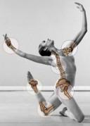 dancer injury xray